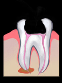 Root Canal | GS Dental | Dr. Giombolini and Dr. Sill | Albuquerque, NM 87109