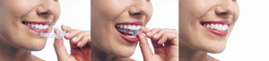 Invisalign | GS Dental | Dr. Giombolini and Dr. Sill | Albuquerque, NM 87109