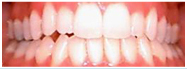 White Fillings | GS Dental | Dr. Giombolini and Dr. Sill | Albuquerque, NM 87109